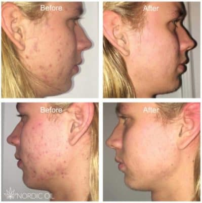 CBD acne