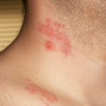 Shingles or herpes zoster