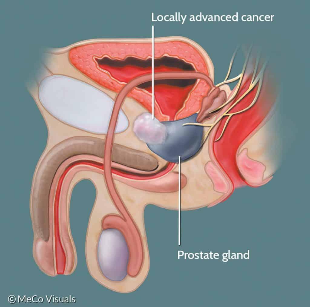 Cancro da próstata espalhando-se fora da glândula